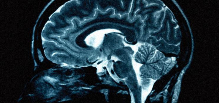 Psychology Cognitive Neuroscience   Manchester University